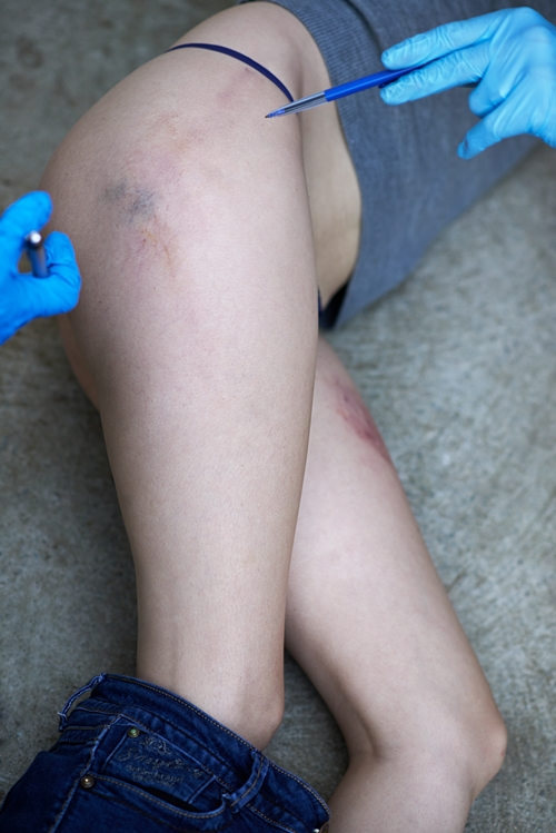 Cropped shot of a woman's bruised legs with her jeans pulled downhttp://195.154.178.81/DATA/shoots/ic_783946.jpg